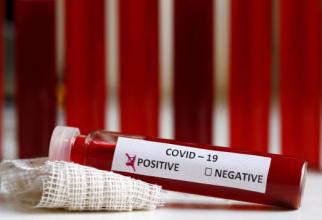 test_pozitiv_negativ_covid