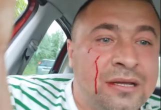 Activist din Buzău, bătut în prezența a doi polițiști  Mi-am dat seama că poliția nu mă protejează cu nimic